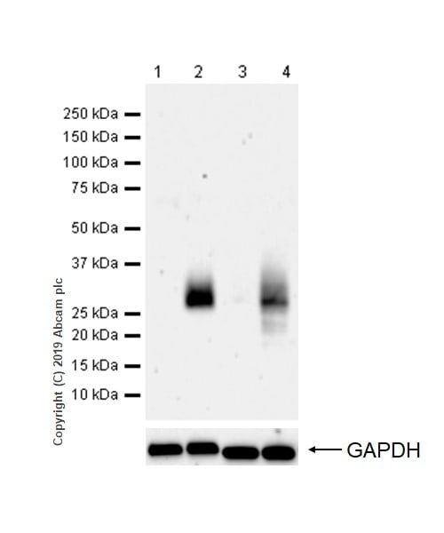 Western blot - Anti-CTLA4 antibody [CAL49] (ab237712)