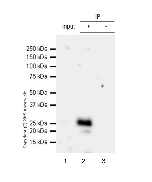 Immunoprecipitation - Anti-CTLA4 antibody [CAL49] (ab237712)