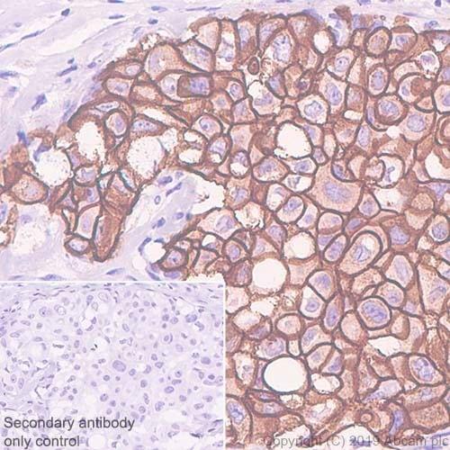 Immunohistochemistry (Formalin/PFA-fixed paraffin-embedded sections) - Anti-ErbB 2 antibody [CAL27] (ab237715)