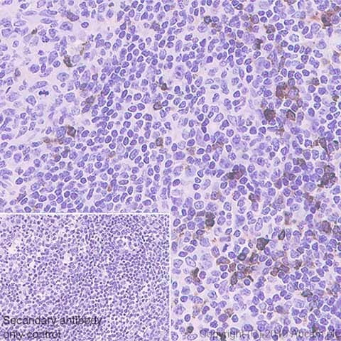 Immunohistochemistry (Formalin/PFA-fixed paraffin-embedded sections) - Anti-LAG-3 antibody [CAL26] (ab237719)