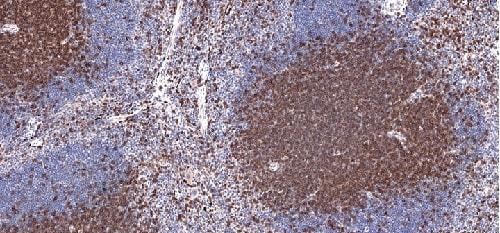 Immunohistochemistry (Formalin/PFA-fixed paraffin-embedded sections) - Anti-CD3 epsilon antibody [CAL57] (ab237721)
