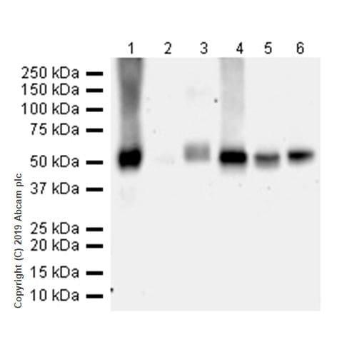 Western blot - Anti-CD4 antibody [CAL4] (ab237722)