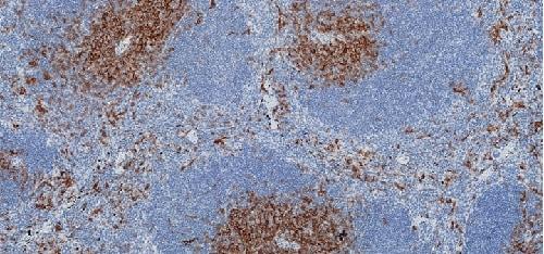 Immunohistochemistry (Formalin/PFA-fixed paraffin-embedded sections) - Anti-CD8 antibody [CAL38] (ab237723)