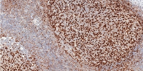 Immunohistochemistry (Formalin/PFA-fixed paraffin-embedded sections) - Anti-PD1 antibody [CAL15] (ab237727)