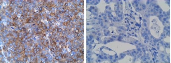 Immunohistochemistry (Formalin/PFA-fixed paraffin-embedded sections) - Anti-SLAMF7/CS1 antibody [CAL7] (ab237730)