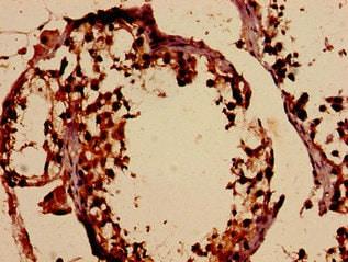 Immunohistochemistry (Formalin/PFA-fixed paraffin-embedded sections) - Anti-DMC1 antibody (ab237733)