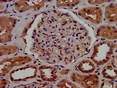 Immunohistochemistry (Formalin/PFA-fixed paraffin-embedded sections) - Anti-C1GALT1 antibody (ab237734)
