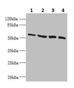 Western blot - Anti-CCDC112 antibody (ab237742)