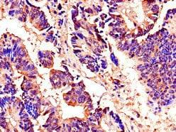Immunohistochemistry (Formalin/PFA-fixed paraffin-embedded sections) - Anti-AKAP9 antibody (ab237752)