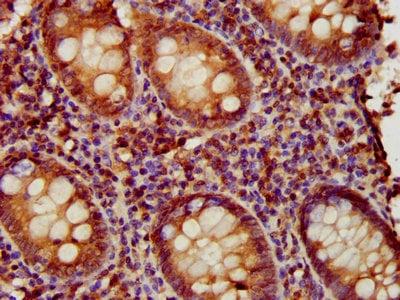 Immunohistochemistry (Formalin/PFA-fixed paraffin-embedded sections) - Anti-EAF2 antibody (ab237753)
