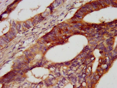 Immunohistochemistry (Formalin/PFA-fixed paraffin-embedded sections) - Anti-Cadherin 7 antibody (ab237754)