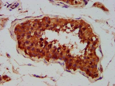 Immunohistochemistry (Formalin/PFA-fixed paraffin-embedded sections) - Anti-CLCC1 antibody (ab237755)