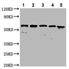 Western blot - Anti-CLCC1 antibody (ab237755)
