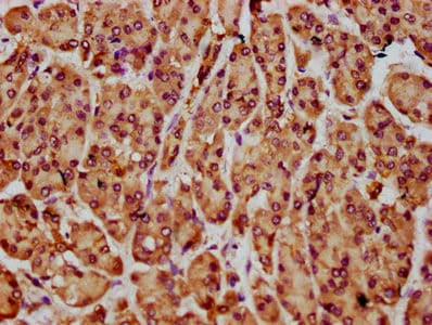 Immunohistochemistry (Formalin/PFA-fixed paraffin-embedded sections) - Anti-NLN antibody (ab237756)