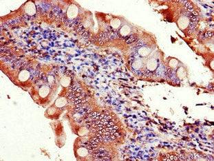 Immunohistochemistry (Formalin/PFA-fixed paraffin-embedded sections) - Anti-EIF3C antibody (ab237757)