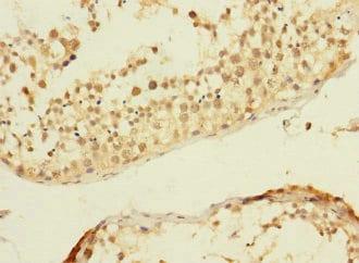 Immunohistochemistry (Formalin/PFA-fixed paraffin-embedded sections) - Anti-C20orf112/NOL4L antibody (ab237758)