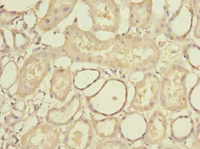Immunohistochemistry (Formalin/PFA-fixed paraffin-embedded sections) - Anti-STK33 antibody (ab237759)
