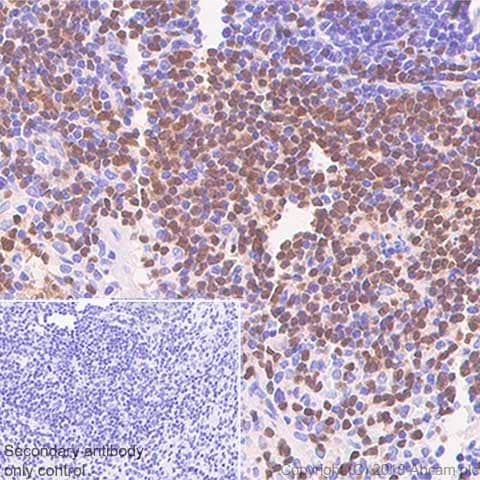Immunohistochemistry (Formalin/PFA-fixed paraffin-embedded sections) - Anti-PAX5 antibody [SP34] - BSA and Azide free (ab237773)