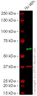 Western blot - Anti-Cytokeratin 10 antibody [AE20] (ab237775)