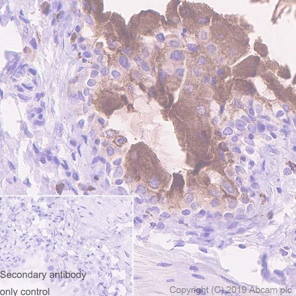 Immunohistochemistry (Formalin/PFA-fixed paraffin-embedded sections) - Anti-Uroplakin Ib/UPIb antibody [2N23] (ab237777)