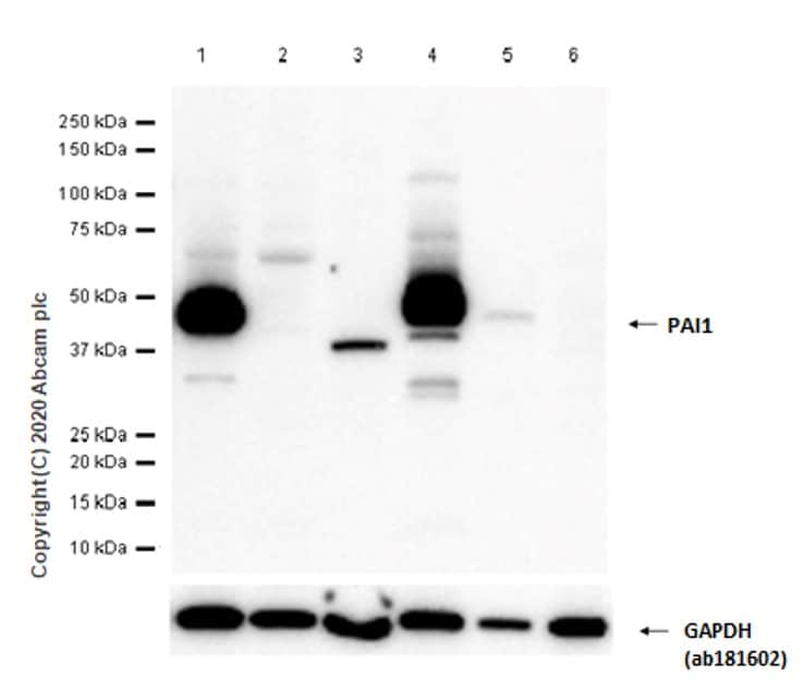 Western blot - Anti-PAI1 antibody [EPR21850-82] - BSA and Azide free (ab237780)