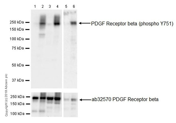 Western blot - Anti-PDGFR beta (phospho Y751) antibody [EPR21744] - BSA and Azide free (ab237781)