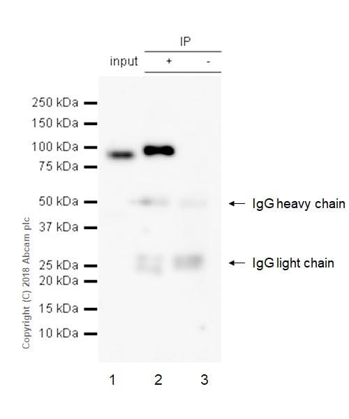 Immunoprecipitation - Anti-MMP9 antibody [EPR22140-154] - BSA and Azide free (ab237782)
