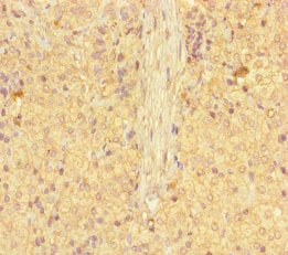 Immunohistochemistry (Formalin/PFA-fixed paraffin-embedded sections) - Anti-GALT antibody (ab237805)