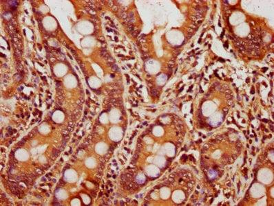 Immunohistochemistry (Formalin/PFA-fixed paraffin-embedded sections) - Anti-14-3-3 alpha + beta antibody (ab237807)