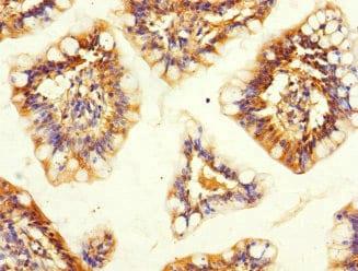 Immunohistochemistry (Formalin/PFA-fixed paraffin-embedded sections) - Anti-SNX18 antibody (ab237808)