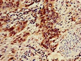 Immunohistochemistry (Formalin/PFA-fixed paraffin-embedded sections) - Anti-ZNF695 antibody (ab237811)