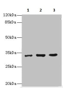 Western blot - Anti-Alpha SNAP antibody (ab237814)