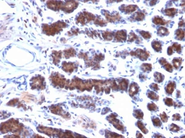 Immunohistochemistry (Formalin/PFA-fixed paraffin-embedded sections) - Anti-Mesothelin antibody [MSLN/2131] - BSA and Azide free (ab237817)