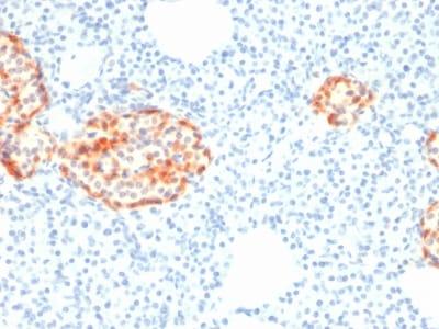 Immunohistochemistry (Formalin/PFA-fixed paraffin-embedded sections) - Anti-Chromogranin A antibody [rCHGA/798] - BSA and Azide free (ab237818)