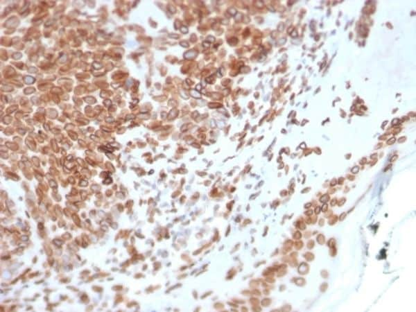 Immunohistochemistry (Formalin/PFA-fixed paraffin-embedded sections) - Anti-Emerin antibody [EMD/2168] - BSA and Azide free (ab237833)