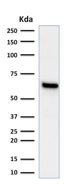 Western blot - Anti-Estrogen Receptor antibody [ESR1/1935] - BSA and Azide free (ab237837)