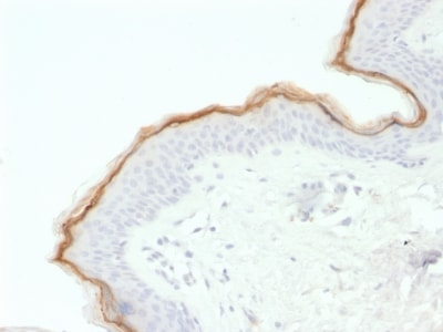 Immunohistochemistry (Formalin/PFA-fixed paraffin-embedded sections) - Anti-Filaggrin antibody [FLG/1563] (ab237839)