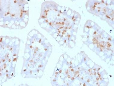 Immunohistochemistry (Formalin/PFA-fixed paraffin-embedded sections) - Anti-CD103 antibody [ITGAE/2474] - BSA and Azide free (ab237855)
