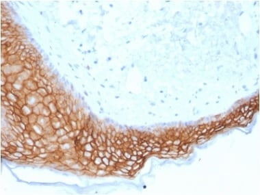 Immunohistochemistry (Formalin/PFA-fixed paraffin-embedded sections) - Anti-TROP2 antibody [TACSTD2/2153] - BSA and Azide free (ab237861)