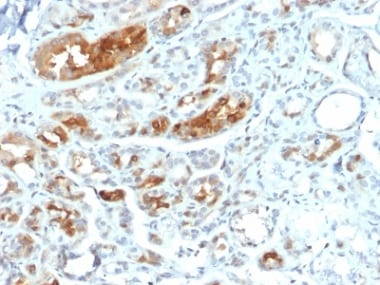 Immunohistochemistry (Formalin/PFA-fixed paraffin-embedded sections) - Anti-Mammaglobin A antibody [MGB1/2000] - BSA and Azide free (ab237862)