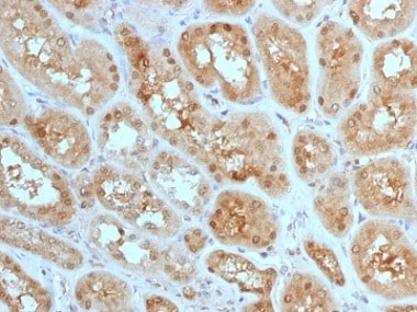Immunohistochemistry (Formalin/PFA-fixed paraffin-embedded sections) - Anti-MTAP antibody [MTAP/1813] - BSA and Azide free (ab237868)