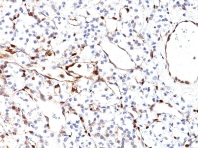 Immunohistochemistry (Formalin/PFA-fixed paraffin-embedded sections) - Anti-PTEN antibody [PTEN/2110] - BSA and Azide free (ab237878)