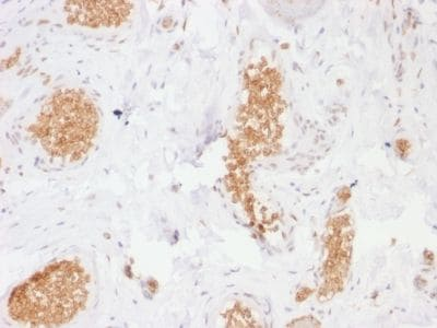 Immunohistochemistry (Formalin/PFA-fixed paraffin-embedded sections) - Anti-Glucose Transporter GLUT1 antibody [GLUT1/2476] - BSA and Azide free (ab237901)