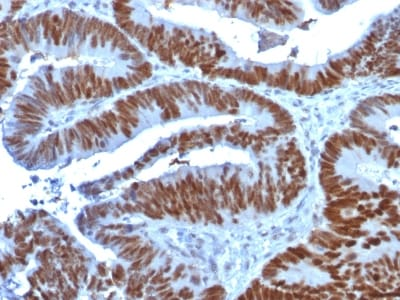 Immunohistochemistry (Formalin/PFA-fixed paraffin-embedded sections) - Anti-p53 antibody [TP53/1739] - BSA and Azide free (ab237920)