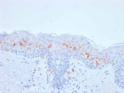 Immunohistochemistry (Formalin/PFA-fixed paraffin-embedded sections) - Anti-CD1a antibody [rC1A/711] - BSA and Azide free (ab237936)