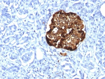Immunohistochemistry (Formalin/PFA-fixed paraffin-embedded sections) - Anti-Chromogranin A antibody [CHGA/1815R] (ab237980)