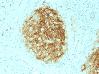 Immunohistochemistry (Formalin/PFA-fixed paraffin-embedded sections) - Anti-CD21 antibody [CR2/1953] (ab237981)