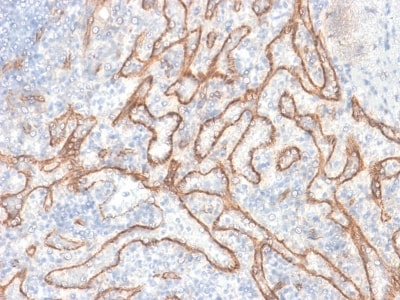 Immunohistochemistry (Formalin/PFA-fixed paraffin-embedded sections) - Anti-beta Catenin antibody [CTNNB1/2030R] (ab237984)
