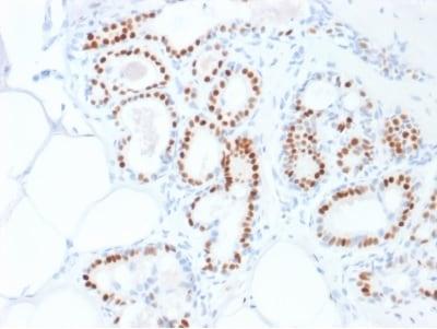 Immunohistochemistry (Formalin/PFA-fixed paraffin-embedded sections) - Anti-Estrogen Receptor antibody [ESR1/1935] (ab237995)