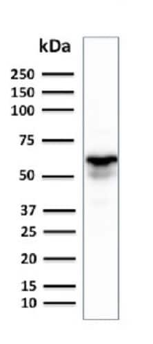 Western blot - Anti-GAD1 antibody [GAD1/2391] (ab237998)